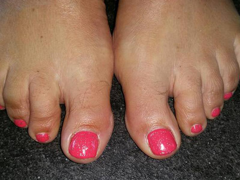 Gallerij-voeten 3